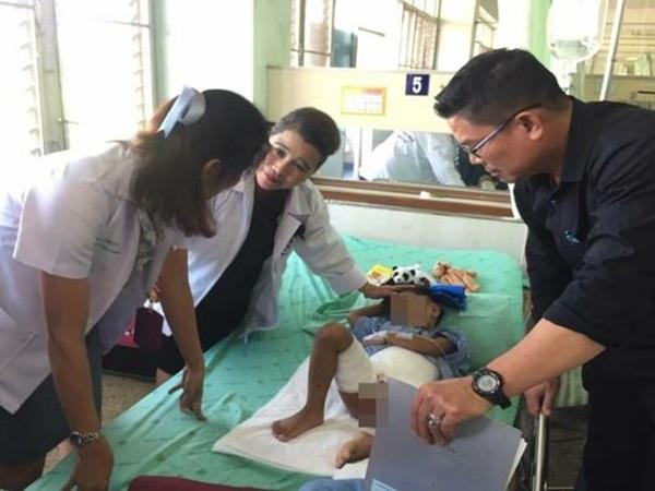 طفل يدخل المستشفى مصابًا بحروق من التعذيب .. والشرطة وراء المتسببين في ذلك