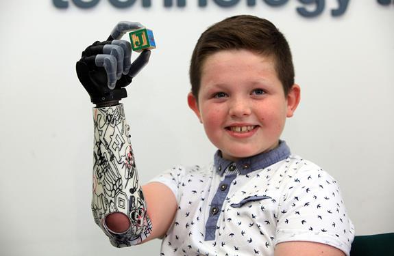 طفل في الحادية عشرة من عمره يصبح أول طفل يمتلك يدين آليتين
