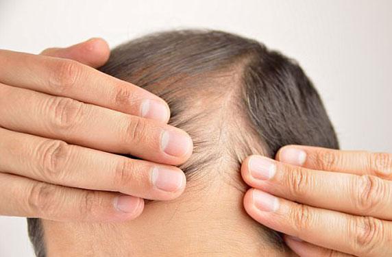 علماء يكتشفون خلايا مناعية يمكنها تحفيز نمو الشعر وعلاج الصلع