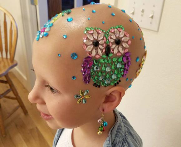 جيانيسا رايد .. قصة تحدي طفلة صغيرة في مواجهة صلع رأسها !