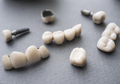 كيف تتم عملية زرع الأسنان؟