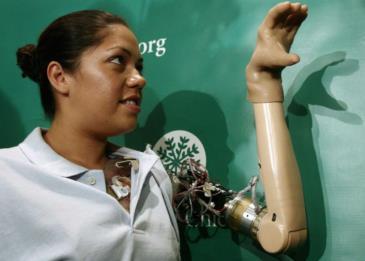 أول امرأة تستخدم ذراعًا صناعية تشعر بأصابعها لأول مرة!