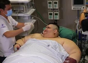 أسمن رجل في العالم يخضع لجراحة بالمعدة بعد أن فقد 385 رطلاً !